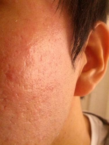 Need Recommendation For Acne Scar/orange Peel Texture