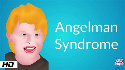 Angelman Syndrome, Causes, Signs and Symptoms, Diagnosis